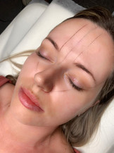 The Brow Mapping Process
