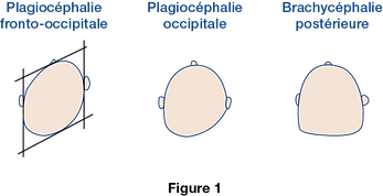 figure_1_plagiocephalie.png