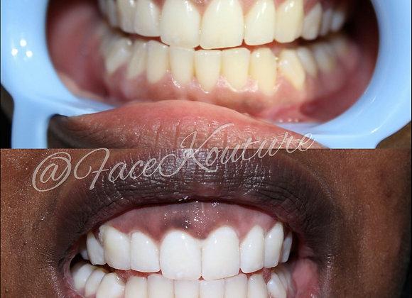 Teeth Whitening Deposit