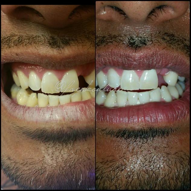 Teeth Whitening for men