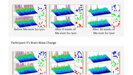 The Effects Of the Ma-eum Su-ryun Program On The Brain Function Of University Students