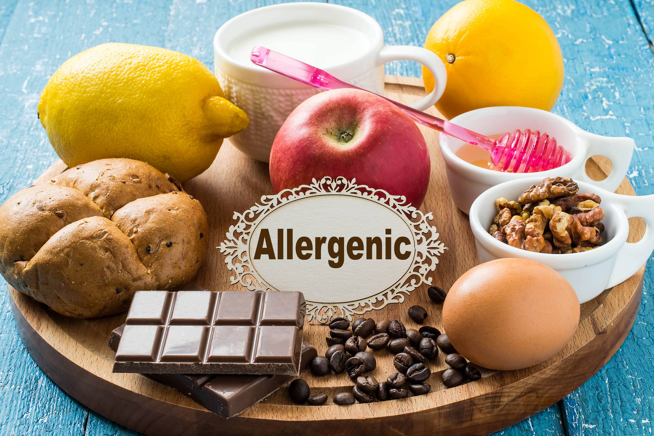 Food Allergies Evaluation/Management