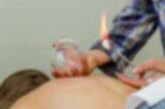 David is skilled in treatments such as cupping, manual therapy, and moxa