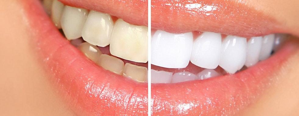 dientes blancos.jpeg