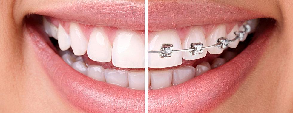 Material-de-ortodoncista-2.jpg