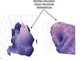 Melanoma e CEC.jpg