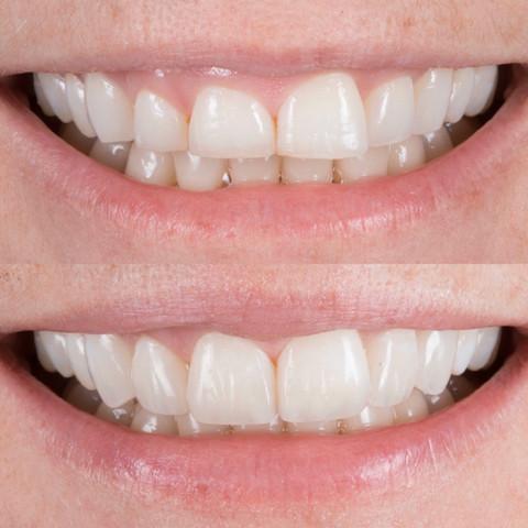 Tooth Wear case