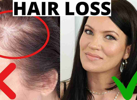 Hair fall Problems in Astrology