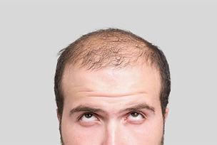 hairfall.jpg