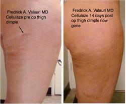 cellulazae right thigh