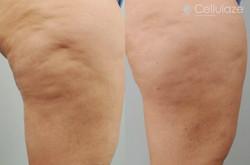 Before-After-Cellulaze-