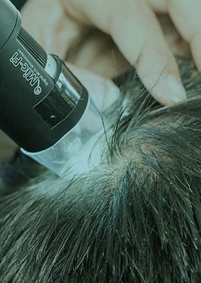 Hair and Scalp analysis for restoration