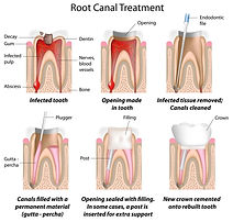 endo root canal tx.jpg