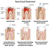endo root canal tx.jpg