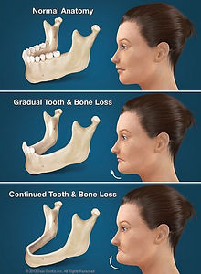 tooth_bone_loss.jpg