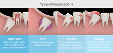 wisdom_tooth_longwood_dental_taipei_dazh