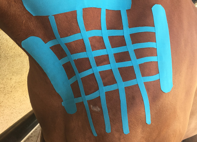 Muskelfaserriss-Behandlung