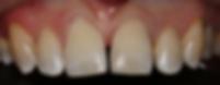 Pinnacle Dental - Filling on broken Incisor tooth