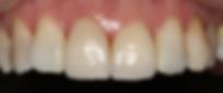 Pinnacle Dental Miranda and Cronulla- Porcelain Veneers