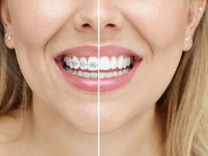 orthodontist miranda