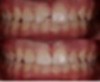 Emergency Dental Case #3.PNG