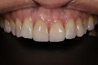 Restoravitve Dentistry Case Study