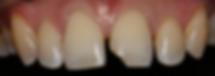 Pinnacle Dental - Broken Front Tooth