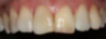 Pinnacle Dental Miranda and Cronulla - Uneven Incisal Edges