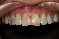 Restorative Dentistry Case Study