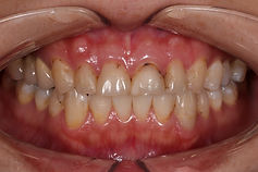 prosthodontics case study