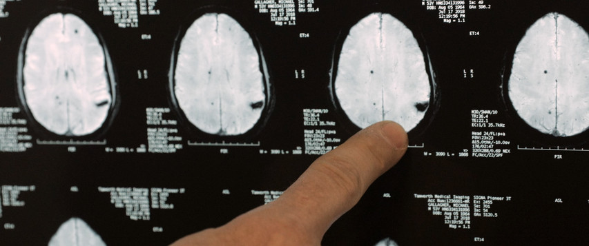 Cavernous Angioma as seen on MRI