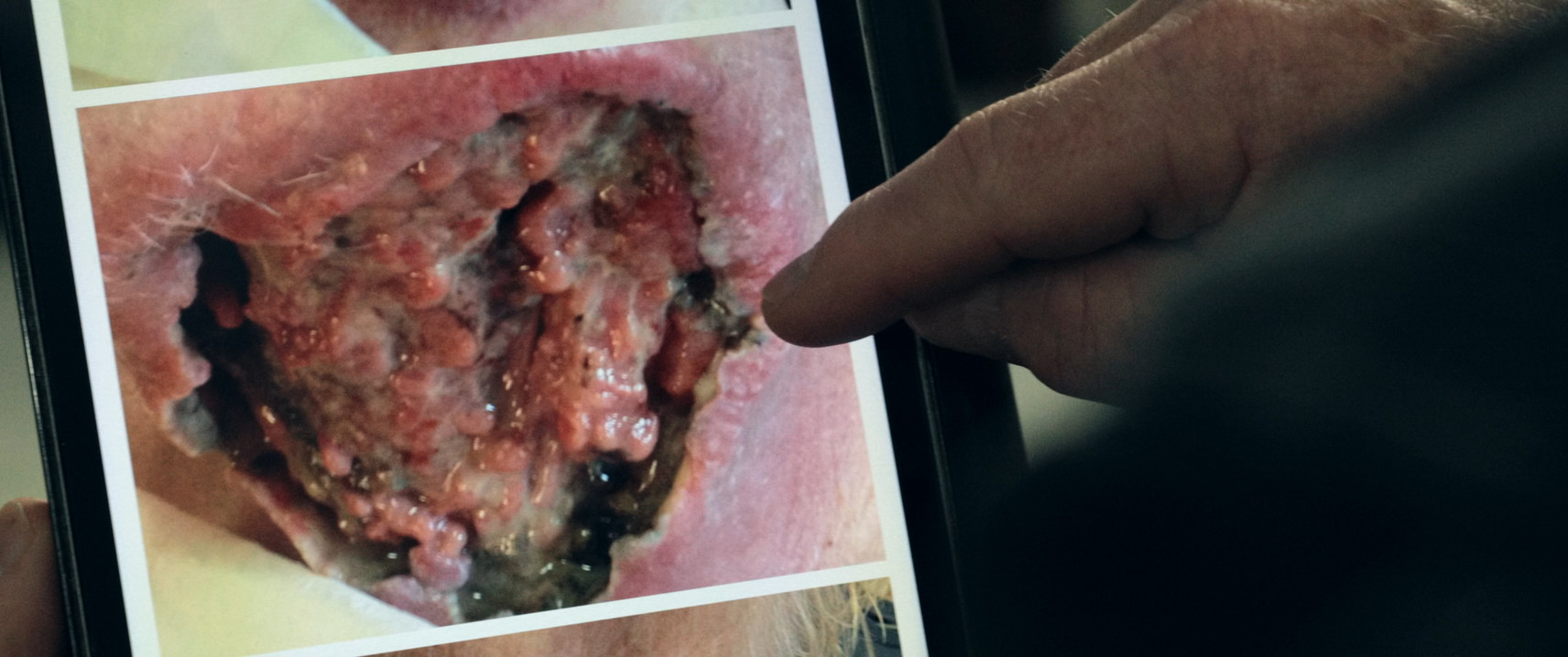 Michael Stoopman, squamous cell carcinoma