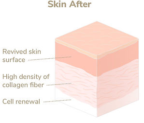 Elevare-Skin-Layers_After.jpg