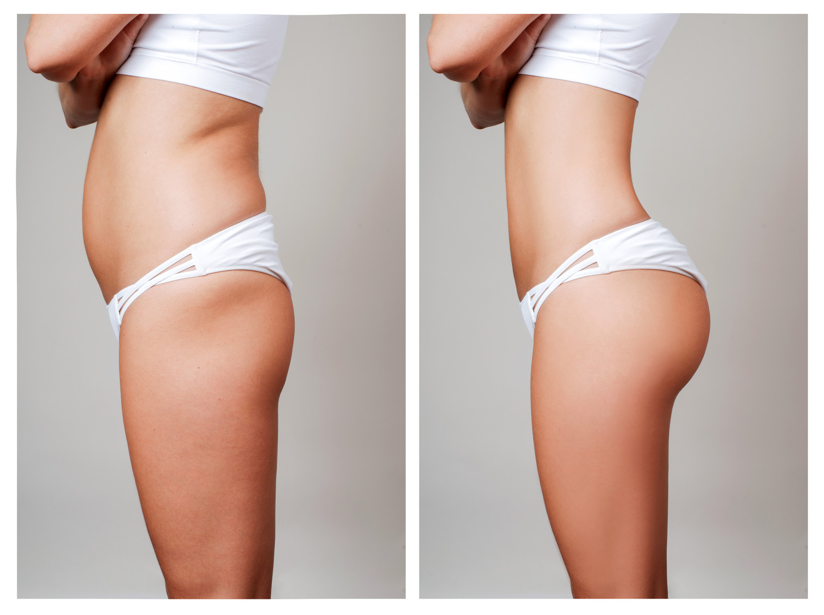Female body before and after liposuction