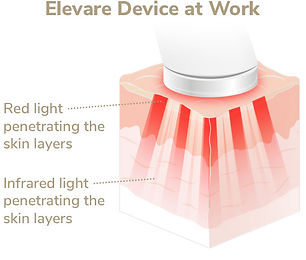 Elevare-Skin-Layers_Device.jpg