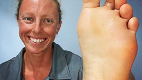 How Podiatry Can Help You Stay Active