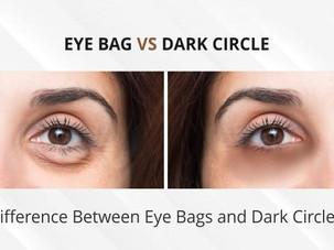 Apa beza eyebag dan dark circle (lingkaran gelap bawah mata)?