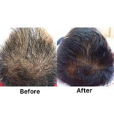 HAIR-LOSS-BANGI.jpeg