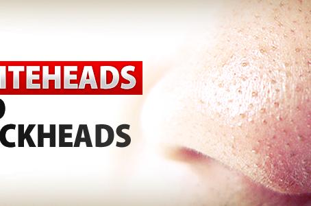 5 CARA ATASI BLACKHEAD DAN WHITEHEAD
