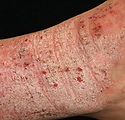 klinik-eczema-shah-alam.jpg