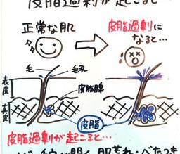 【②皮脂分泌】ニキビが出来る5段階メカニズム!ニキビを改善する5段階メカニズム!