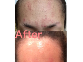 美容皮膚科クリニック提携サロンだから安心できること♡