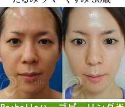 たった5日で肌が生まれ変わる☆!?★1回で!3倍の効果が期待できるハーブピーリングとは…