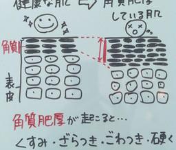 【①角質肥厚】ニキビが出来る5段階メカニズム!ニキビを改善する5段階メカニズム!