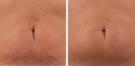antes-y-despues-radiofrecuencia-abdomen_