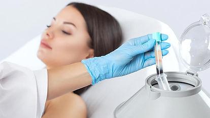 belleza-prp-capilar-tratamiento-plasma-r