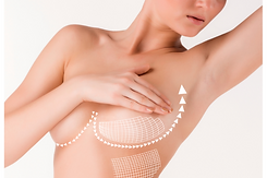mastopexy-breast-lift.png