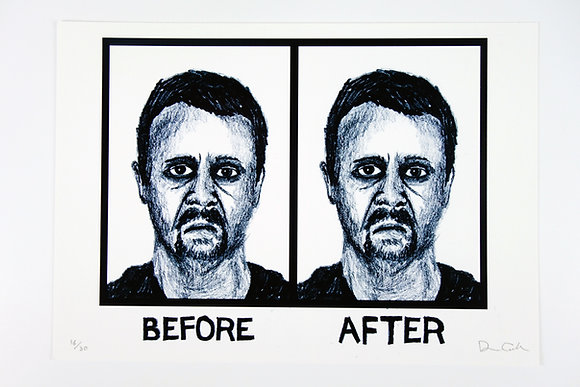 Before/After - Limited edition giclee print