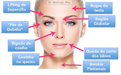 indicações botox
