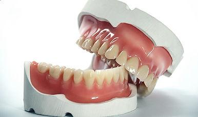 o que são próteses dentárias?